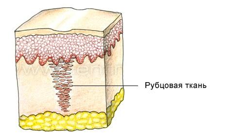 образование рубца
